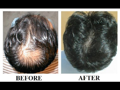 how long does it take to regrow hair