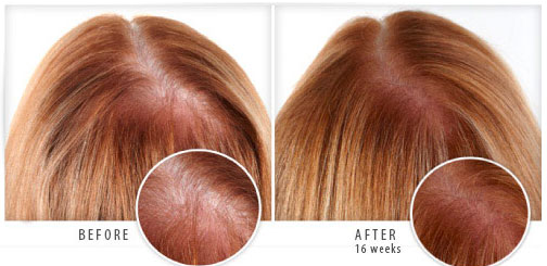 How To Regrow Your Hair Naturally And Easily Regrow Hair