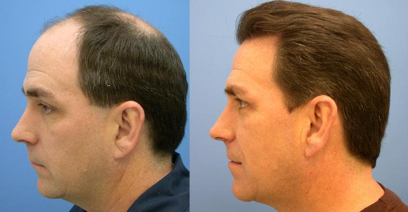 remedies regrow thinning hair naturally | Regrow Hair