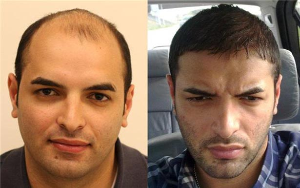 how to stop hair loss and regrow hair naturally male